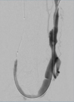 Precise and efficient contrast delivery in retrograde approach